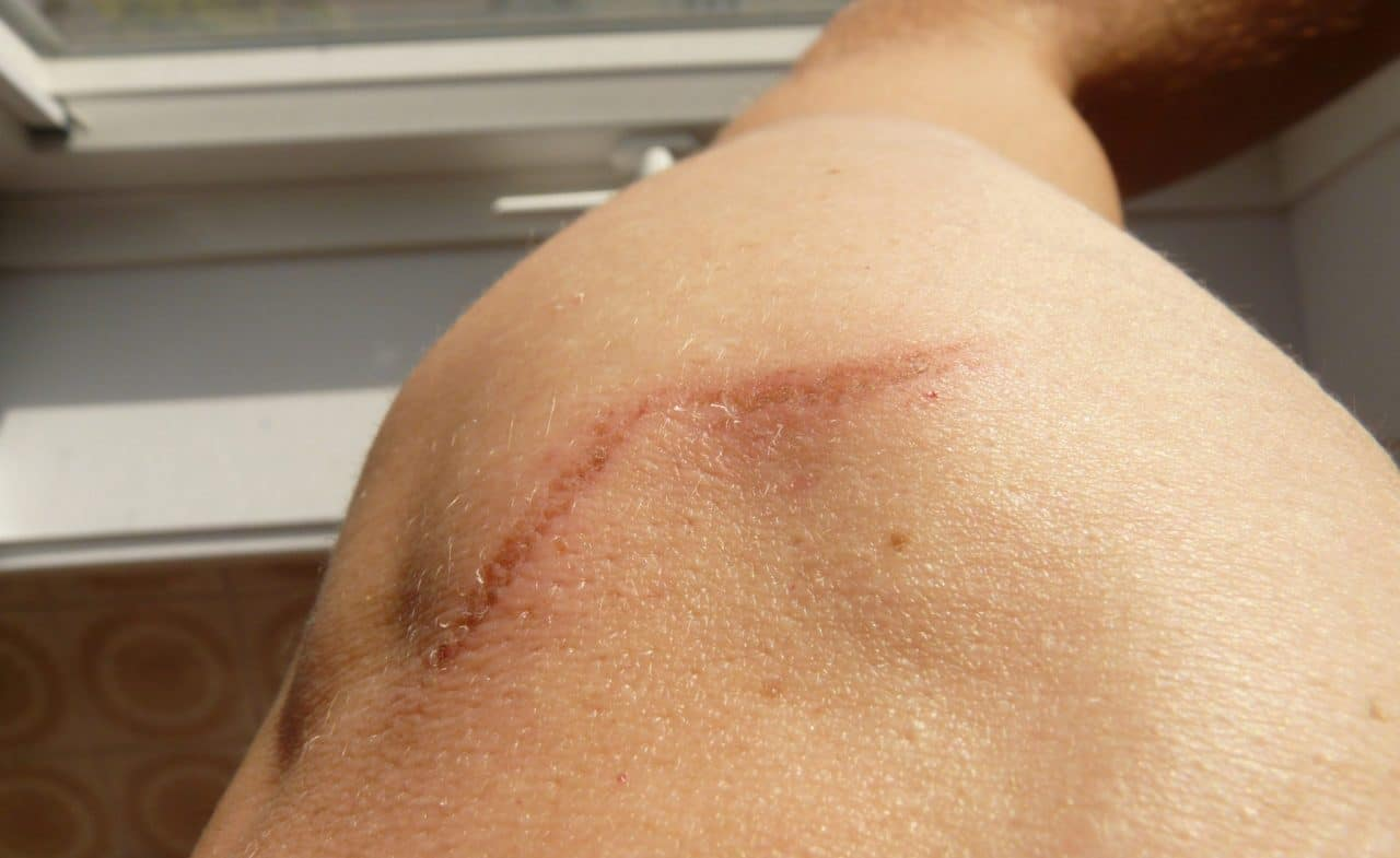 Close-up of  a knee scar
